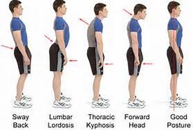 posture types