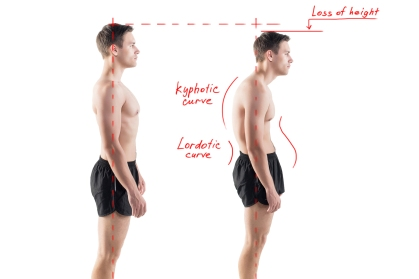 Man with impaired posture position defect scoliosis and ideal be